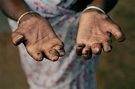 lèpre . Mains déformées.