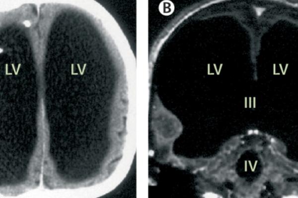90 % du cerveau rempli de liquide céphalo rachidien.